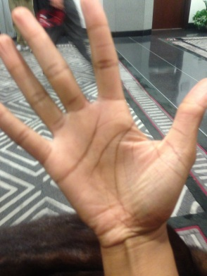 This is the hand Nick shook!